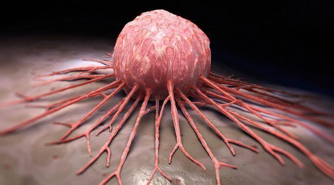 20 عامل خطرناک که ریسک ابتلا به سرطان را بالا می برد
