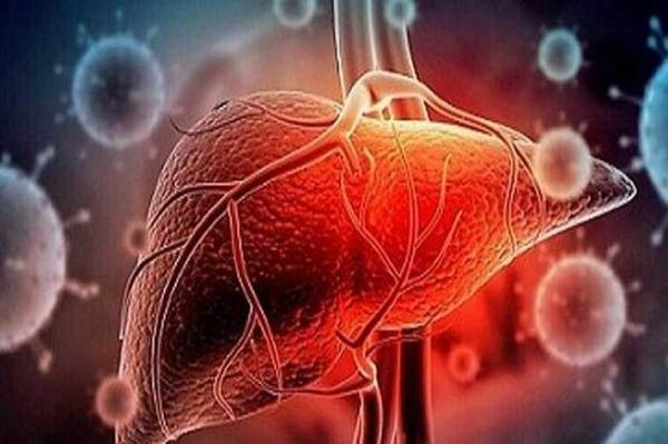 بروز بیماری مزمن کبدی در افراد مبتلا به کرونا